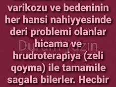 Hicama Zəli xidməti Bakı